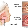 กล่องเสียง อักเสบ ( Laryngitis )