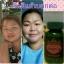 อัมรันต์ ตรีผลา AMARUN TRIPLA ลดเบาหวาน ต้านมะเร็ง รักษาภูมิแพ้ สร้างสมดุลย์ให้ร่างกาย thumbnail 16
