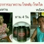 อัมรันต์ ตรีผลา AMARUN TRIPLA ลดเบาหวาน ต้านมะเร็ง รักษาภูมิแพ้ สร้างสมดุลย์ให้ร่างกาย thumbnail 18
