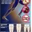 สายรัด แก้ขาโก่ง วิธีแก้ขาโก่งที่ได้ผลดีสุดยอด thumbnail 4